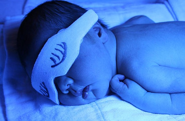 Bilirubina u noworodka